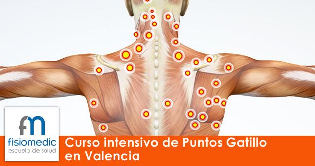 Curso intensivo de Puntos Gatillo en Valencia